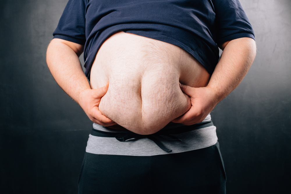 6 Factors That Contribute to Obesity and Why You Should Avoid Becoming Obese