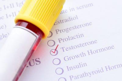 testosterone level test
