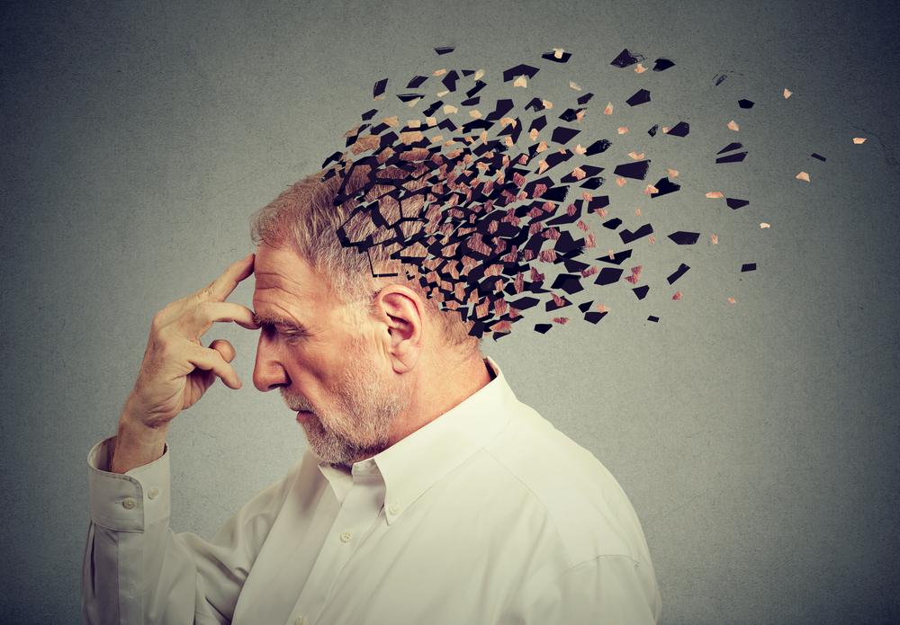 Alzheimer's in Men