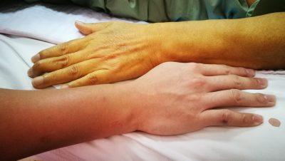 jaundiced skin